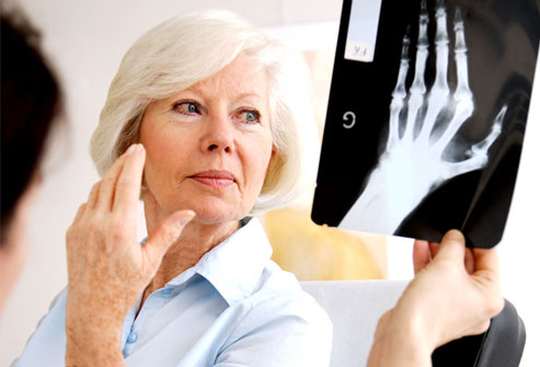 PRinc_rm_photo_of_woman_with_rheumatoid_arthritis